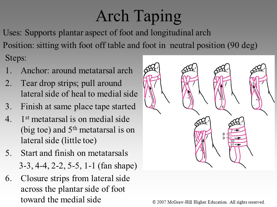 Arch Taping Uses: Supports plantar aspect of foot and longitudinal arch.
