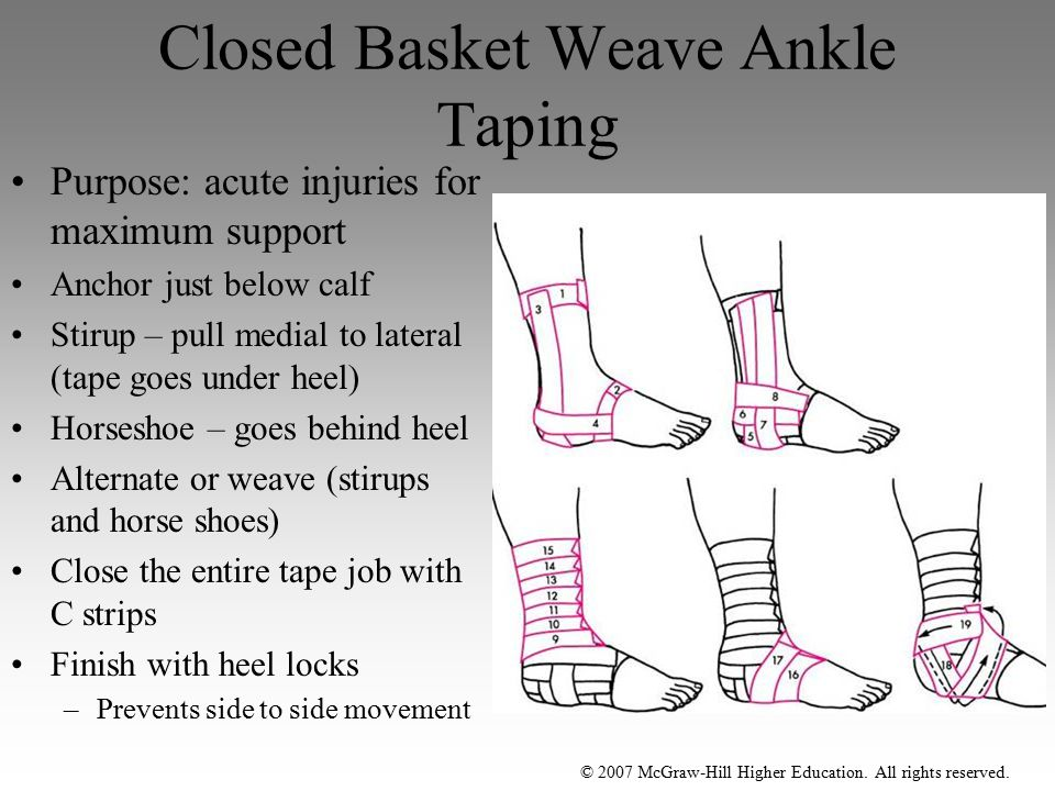 Closed Basket Weave Ankle Taping