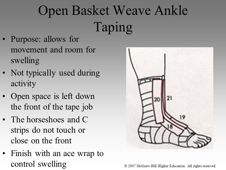 Open Basket Weave Ankle Taping