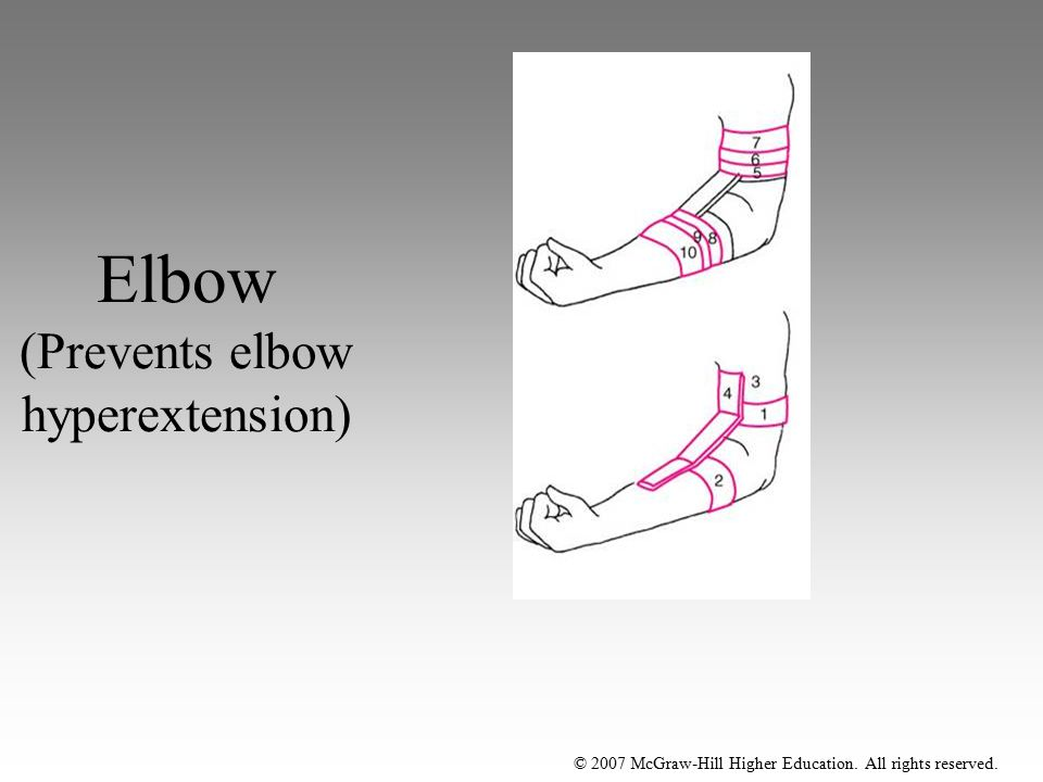 Elbow (Prevents elbow hyperextension)