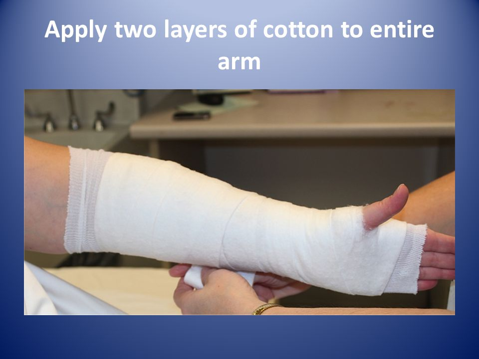 Apply two layers of cotton to entire arm