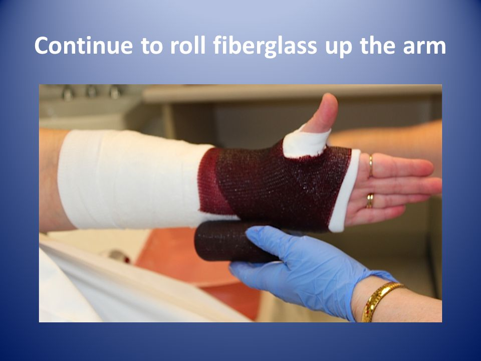 Continue to roll fiberglass up the arm