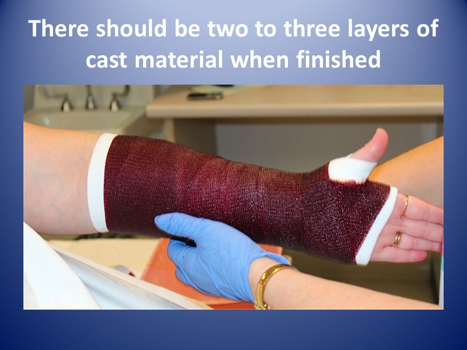 There should be two to three layers of cast material when finished