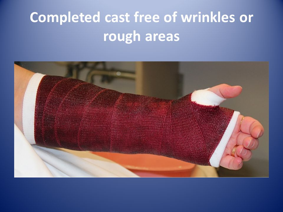 Completed cast free of wrinkles or rough areas