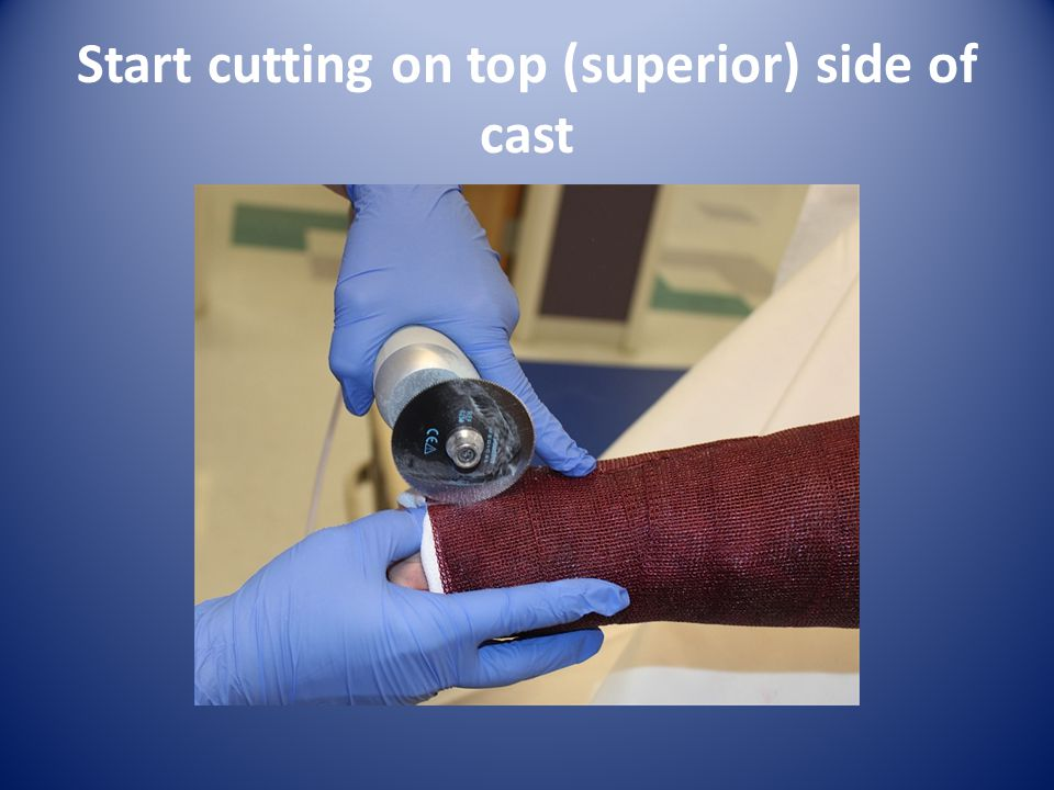 Start cutting on top (superior) side of cast