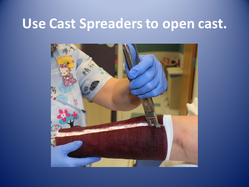 Use Cast Spreaders to open cast.