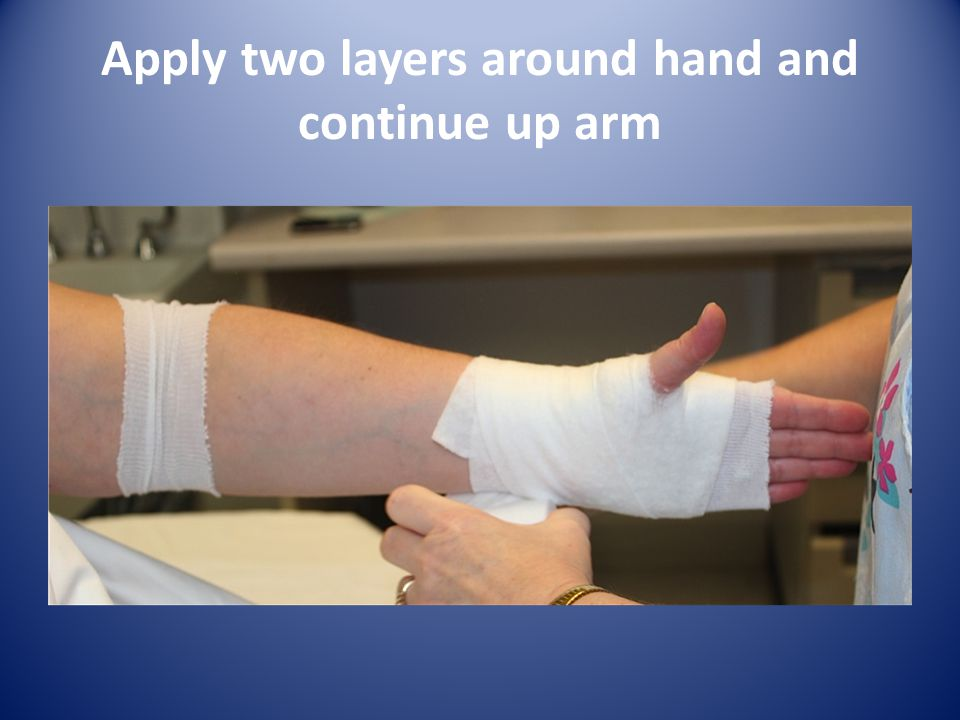 Apply two layers around hand and continue up arm