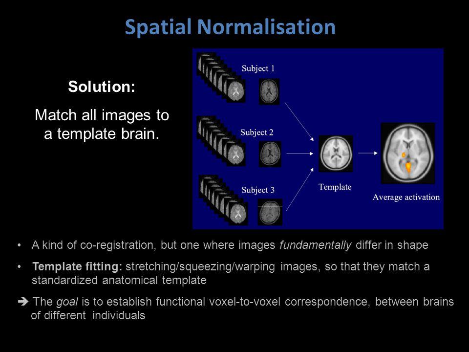 Spatial Normalisation