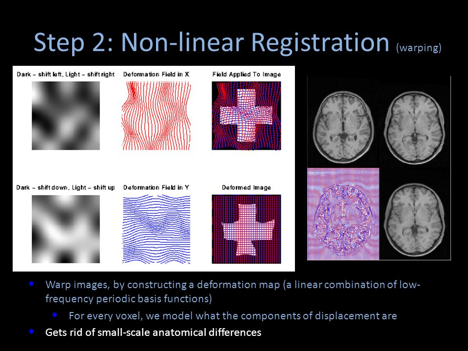 Step 2: Non-linear Registration (warping)
