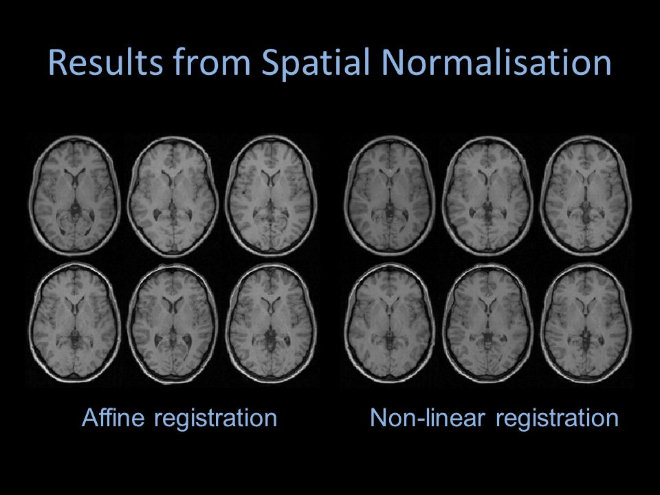 Results from Spatial Normalisation