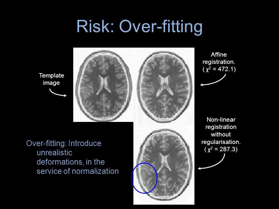 Risk: Over-fitting Affine registration. ( χ2 = 472.1) Template. image. Non-linear. registration.