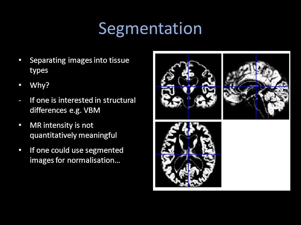 Segmentation Separating images into tissue types Why