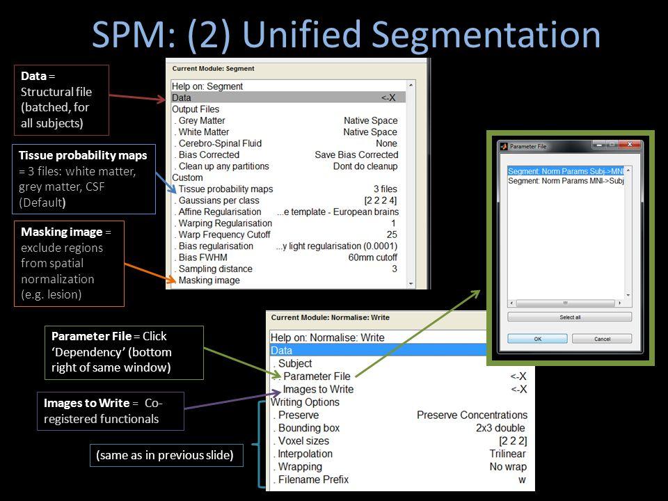 SPM: (2) Unified Segmentation