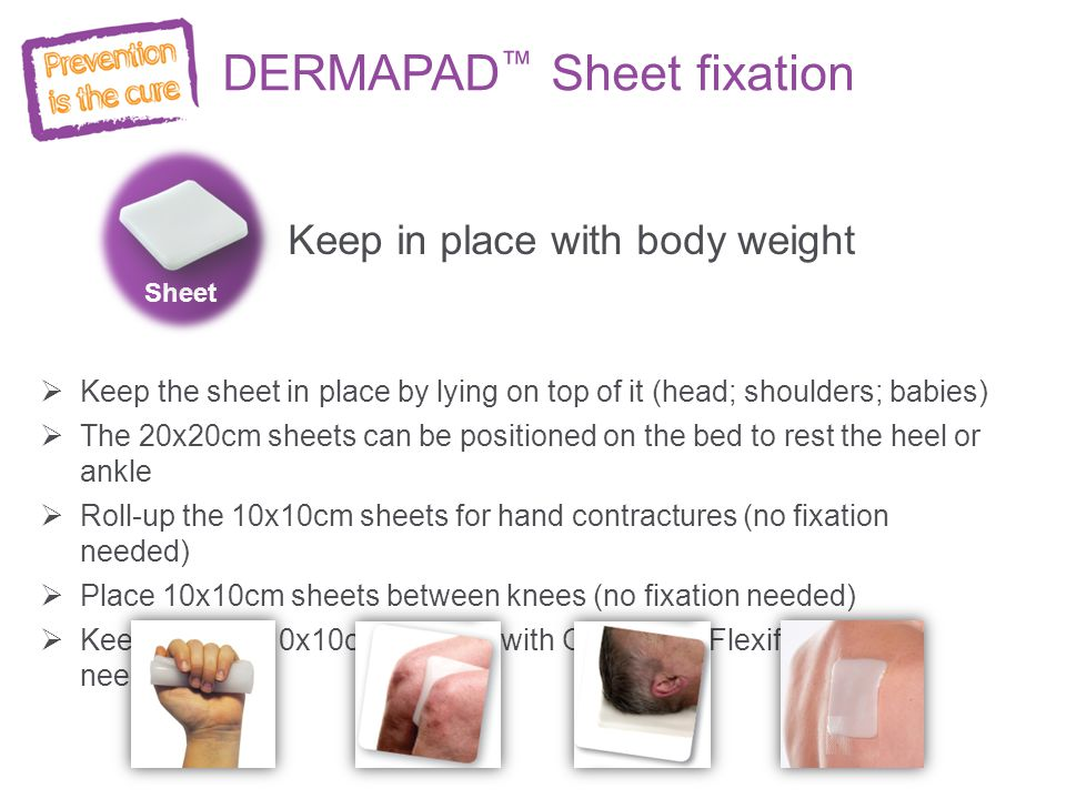 DERMAPAD™ Sheet fixation