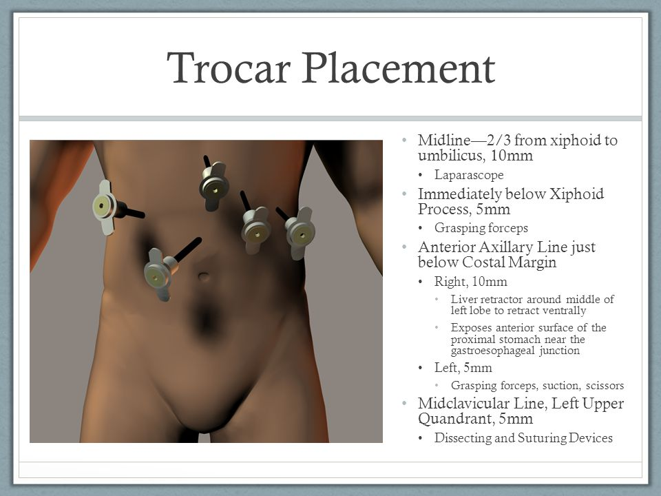 Trocar Placement Midline—2/3 from xiphoid to umbilicus, 10mm