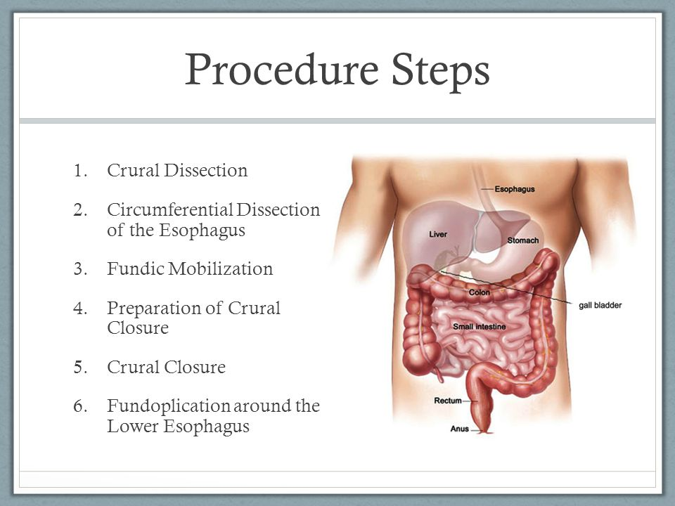 Procedure Steps Crural Dissection