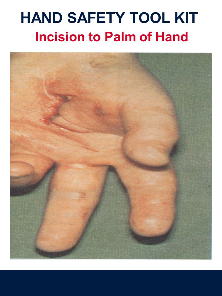 Incision to Palm of Hand