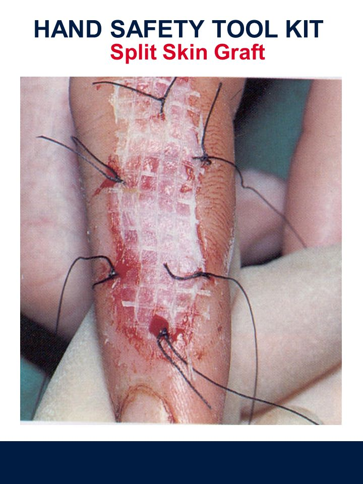 Split Skin Graft