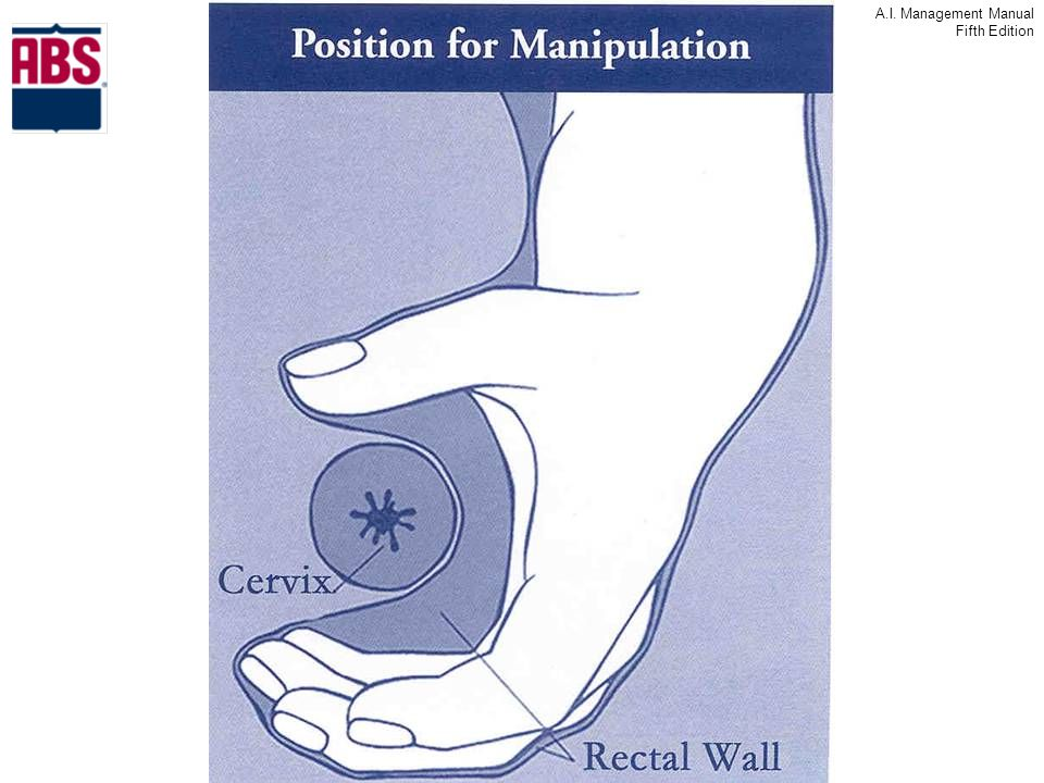 Here's a diagram of the hand position to pick up the cervix.