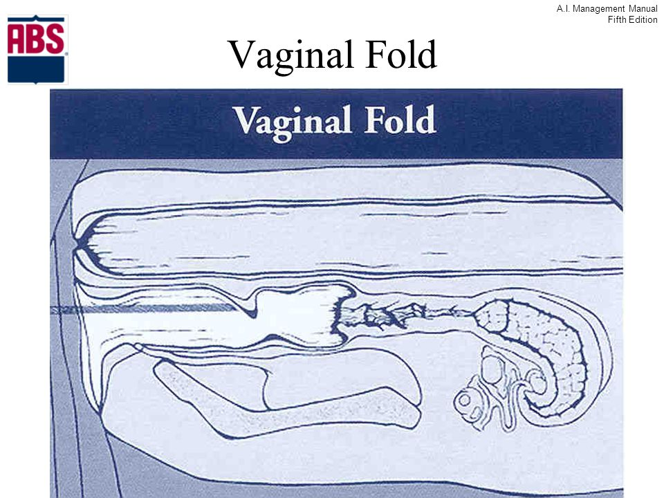 Vaginal Fold What happens to this fold when you move the cervix forward.