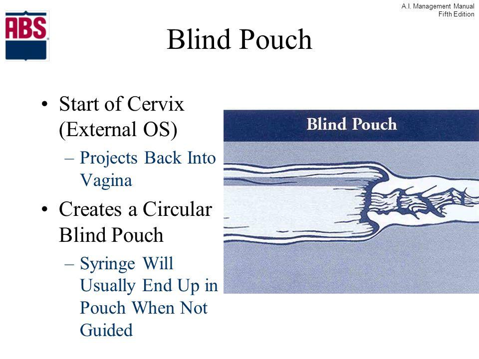 Blind Pouch Start of Cervix (External OS)