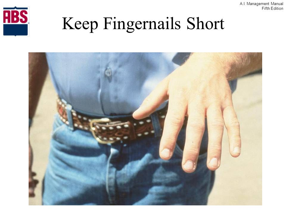 Keep Fingernails Short