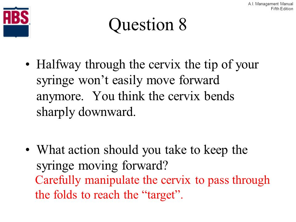 Question 8 Halfway through the cervix the tip of your syringe won't easily move forward anymore. You think the cervix bends sharply downward.