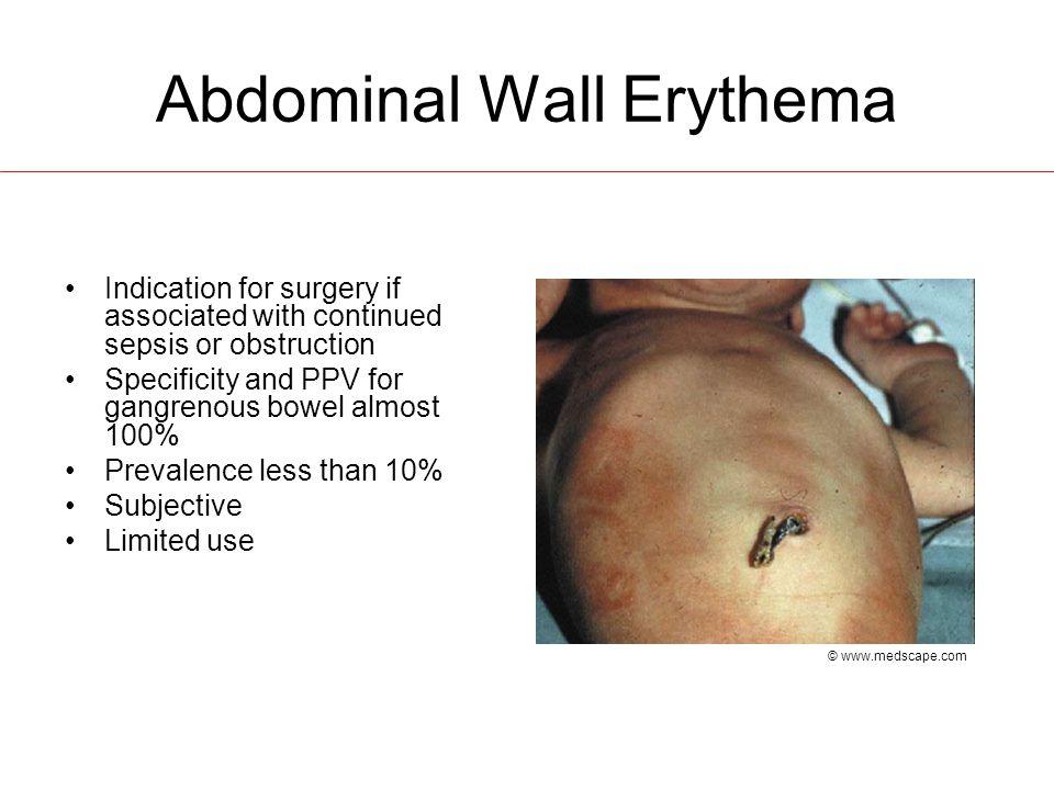 Abdominal Wall Erythema