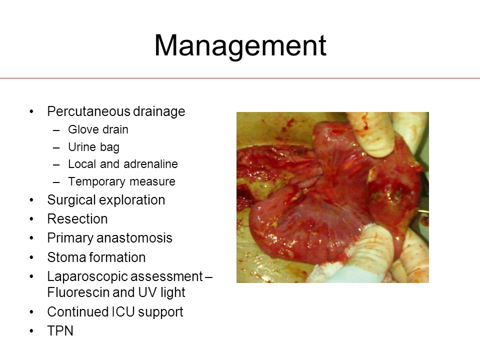 Management Percutaneous drainage Surgical exploration Resection