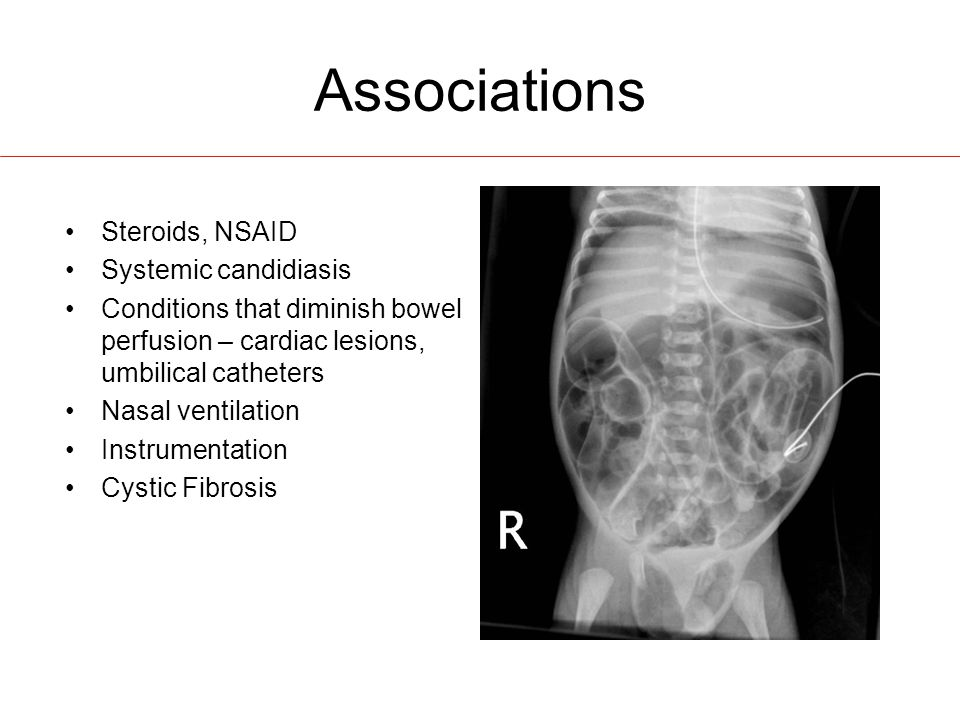 Associations Steroids, NSAID Systemic candidiasis