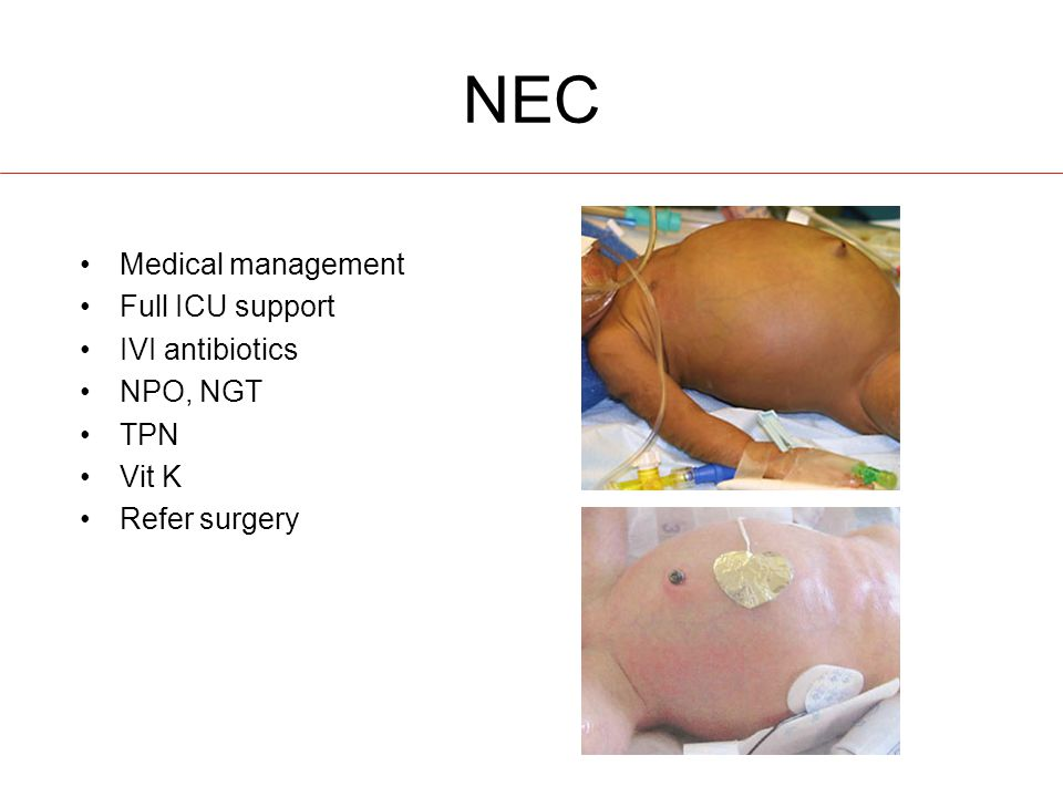 NEC Medical management Full ICU support IVI antibiotics NPO, NGT TPN