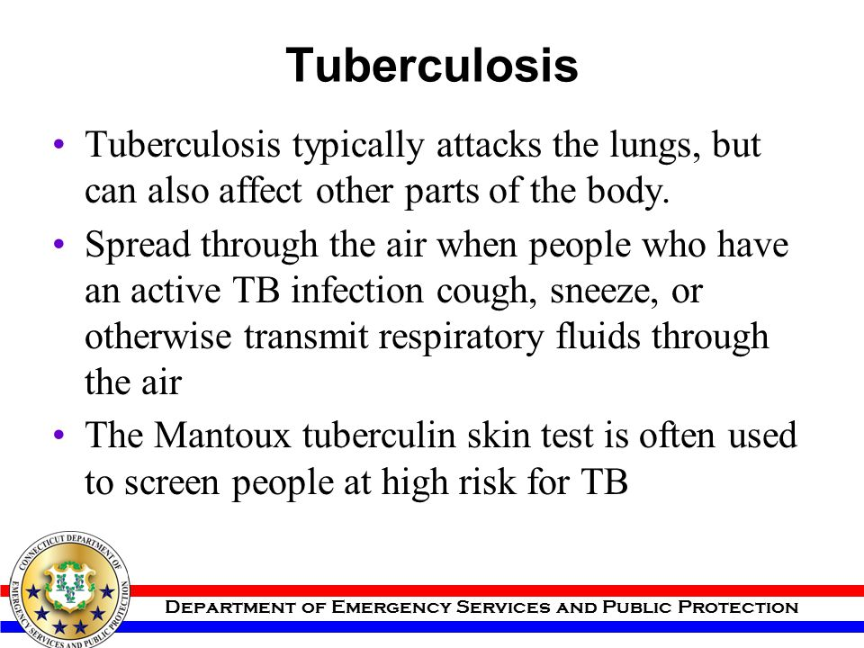 Tuberculosis Tuberculosis typically attacks the lungs, but can also affect other parts of the body.
