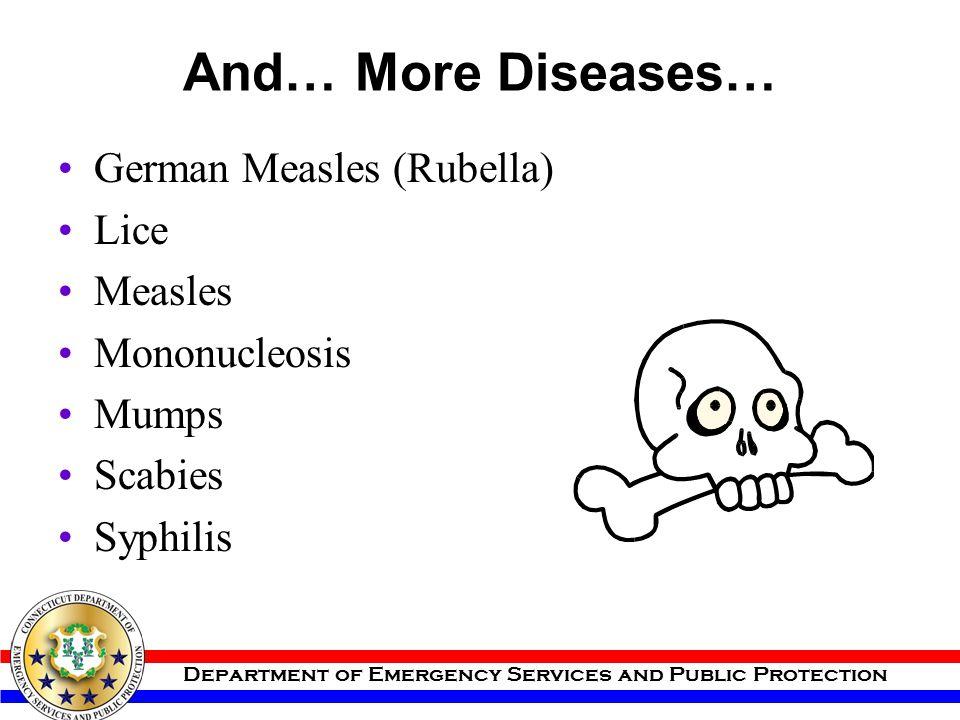 And… More Diseases… German Measles (Rubella) Lice Measles