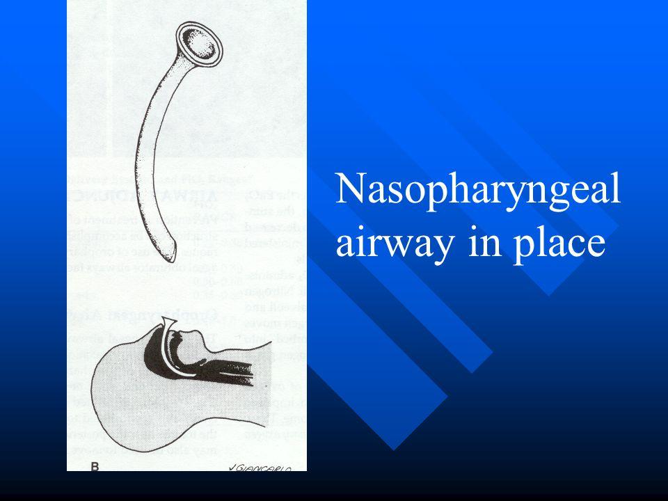 Nasopharyngeal airway in place