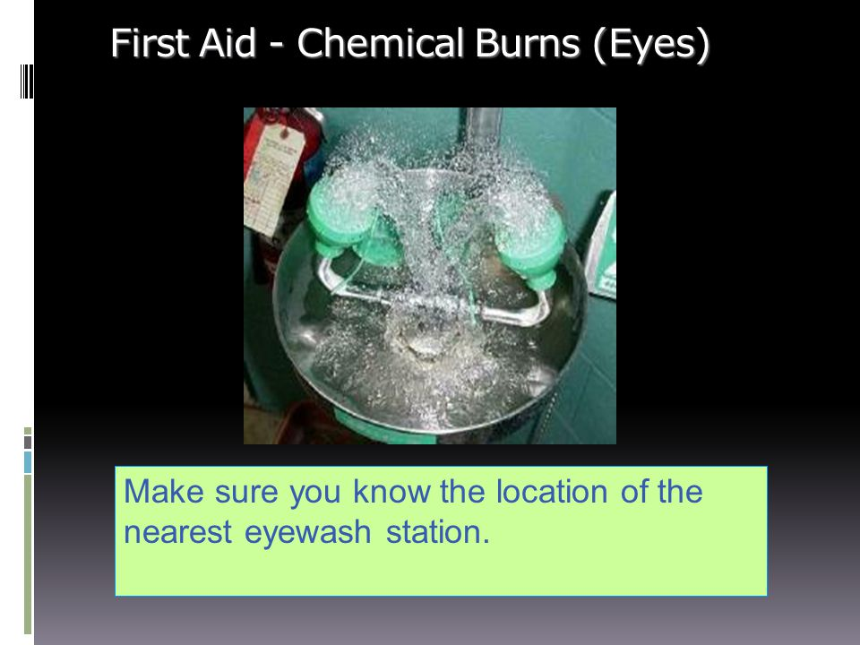 First Aid - Chemical Burns (Eyes)