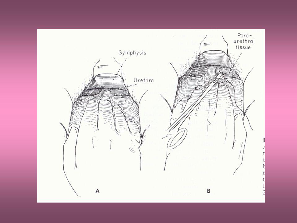 From Fuller p. 390 Vesicourethral suspension
