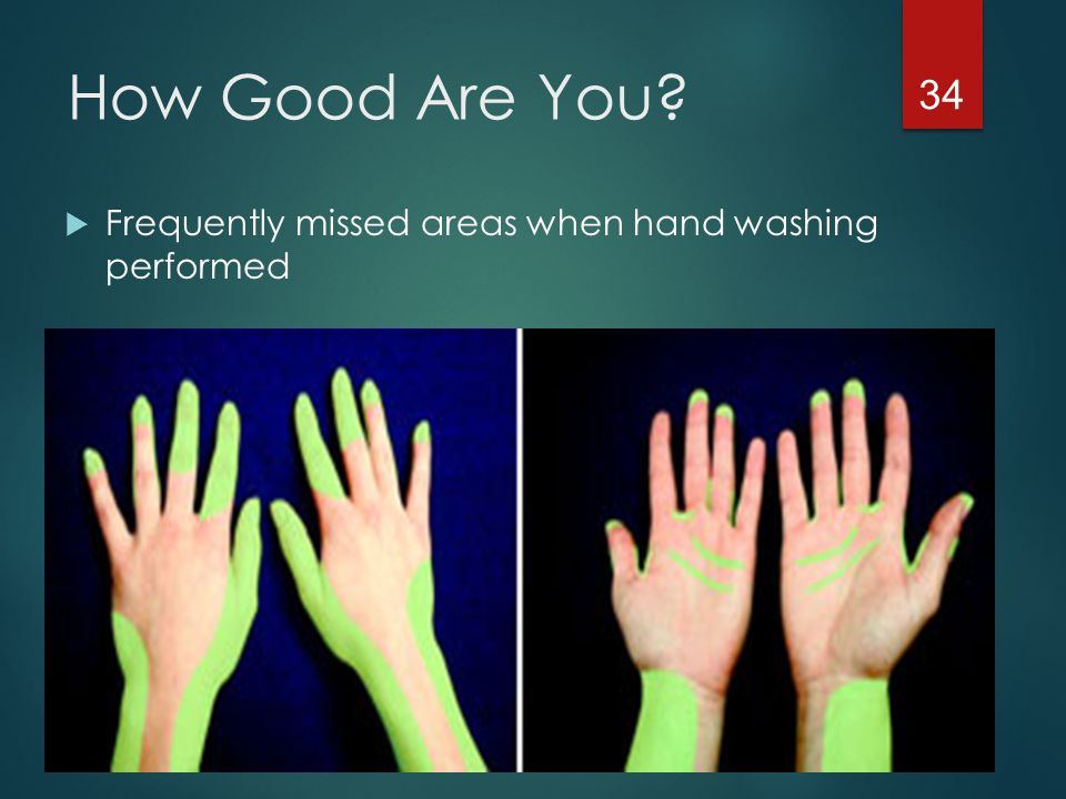 How Good Are You Frequently missed areas when hand washing performed