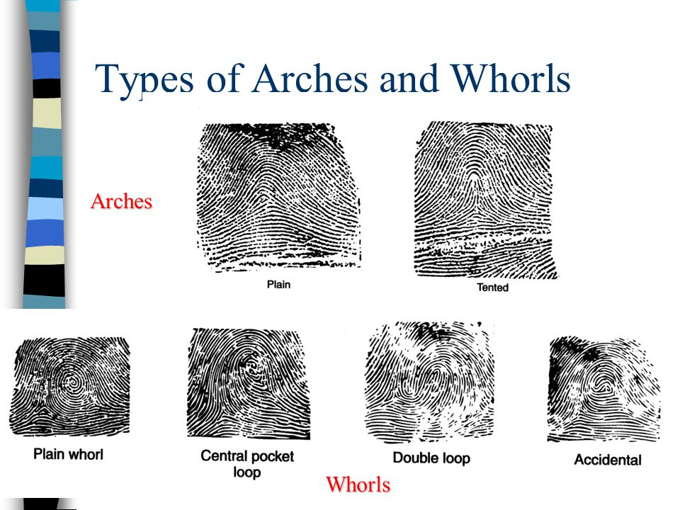 Types of Arches and Whorls