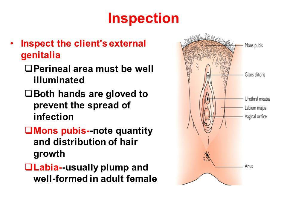 Inspection Inspect the client s external genitalia