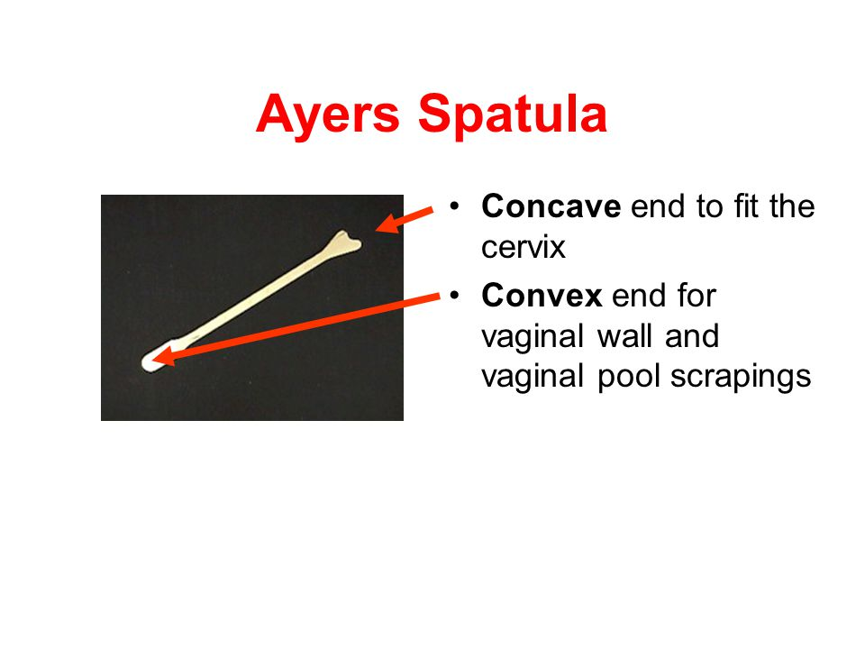 Ayers Spatula Concave end to fit the cervix