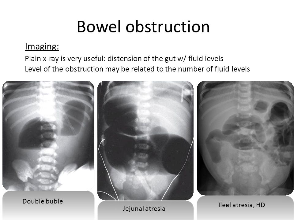 Bowel obstruction Imaging: