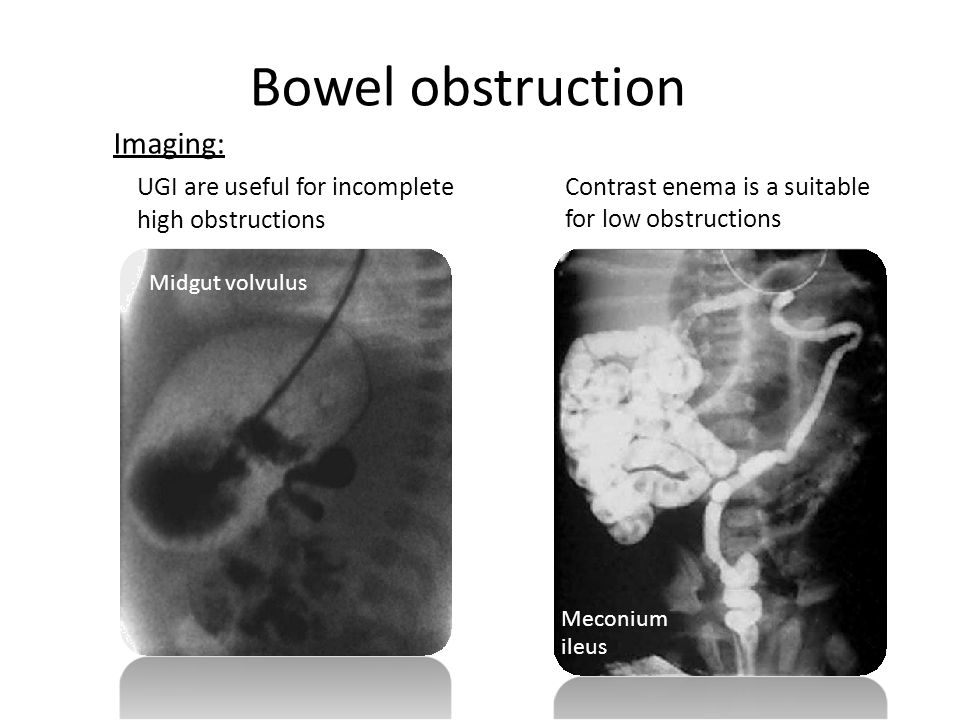 Bowel obstruction Imaging: high obstructions