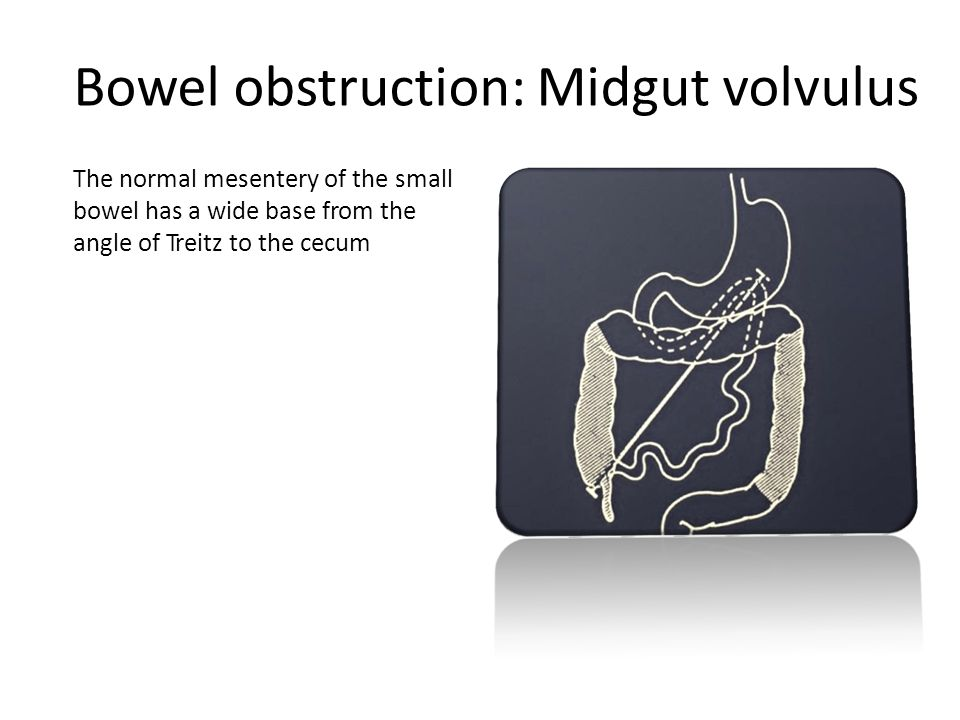 Bowel obstruction: Midgut volvulus