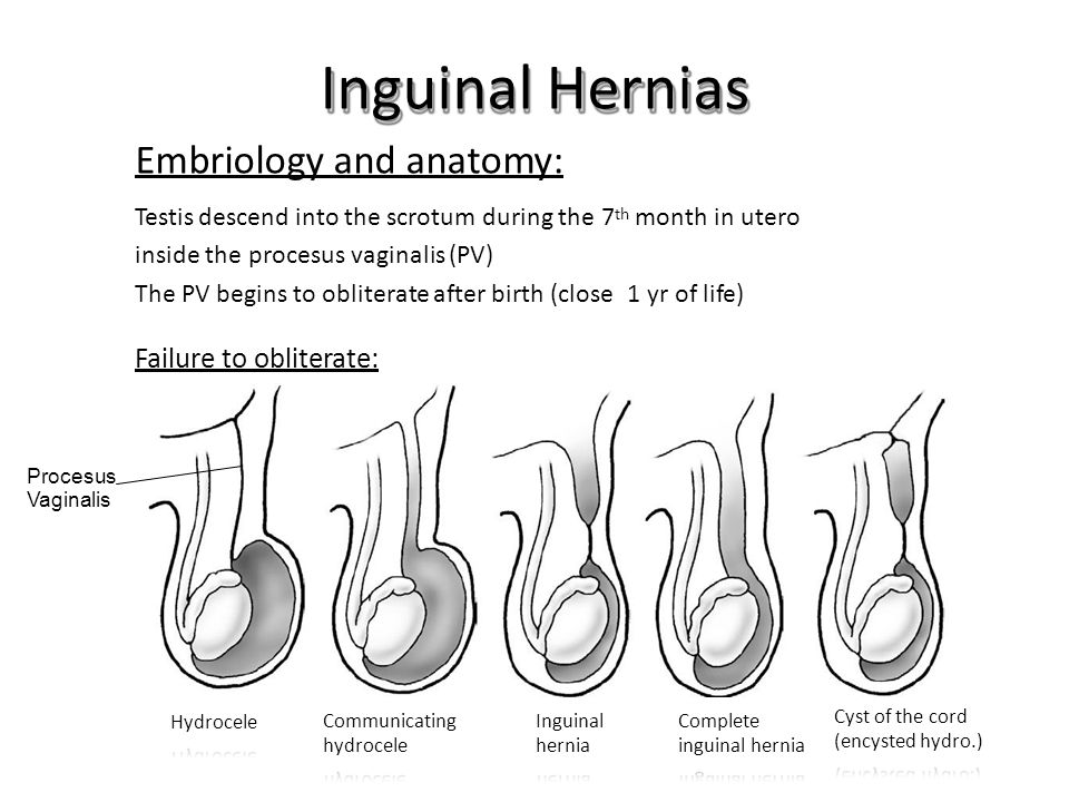 Inguinal Hernias Failure to obliterate: Embriology and anatomy: