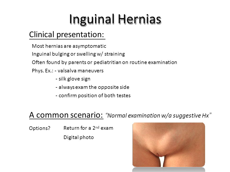 Inguinal Hernias Clinical presentation: Most hernias are asymptomatic. Inguinal bulging or swelling w/ straining.