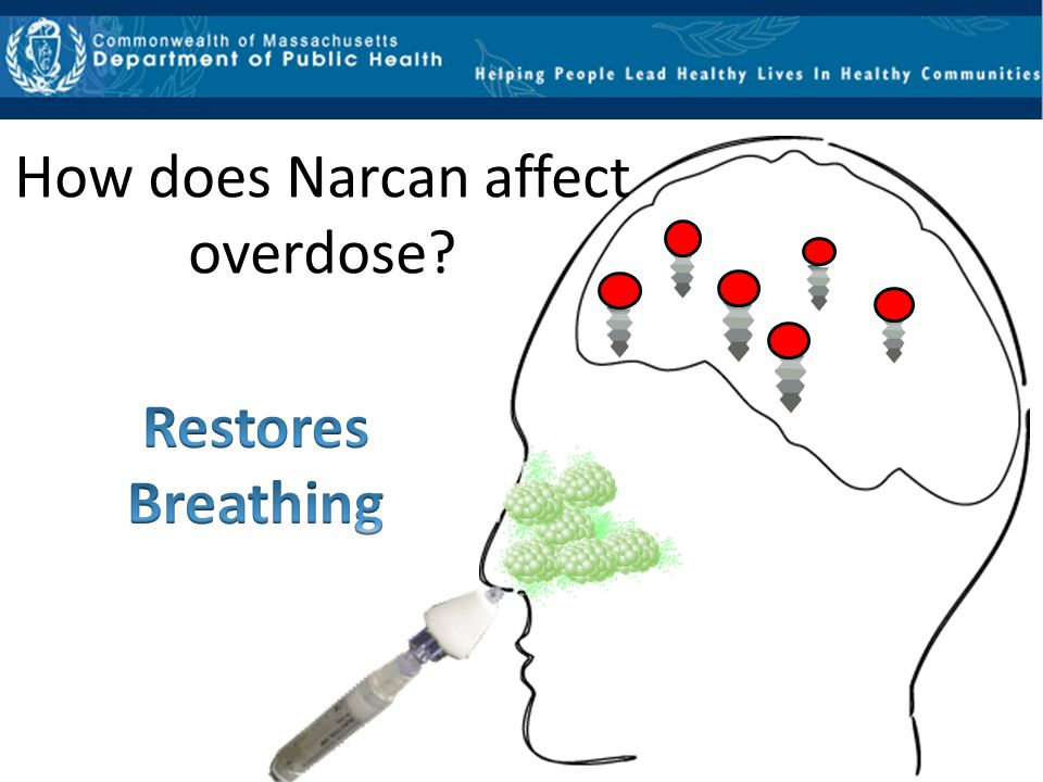 How does Narcan affect overdose