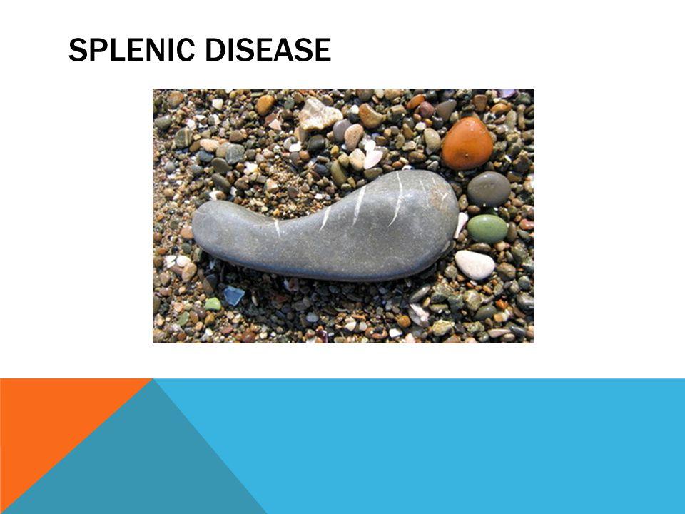 Splenic Disease