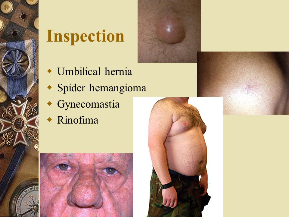 Inspection Umbilical hernia Spider hemangioma Gynecomastia Rinofima