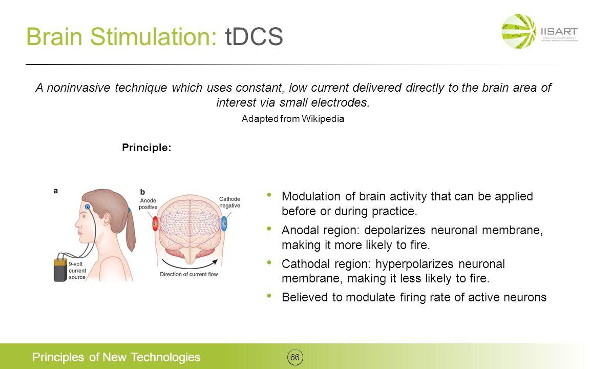 Brain Stimulation: tDCS