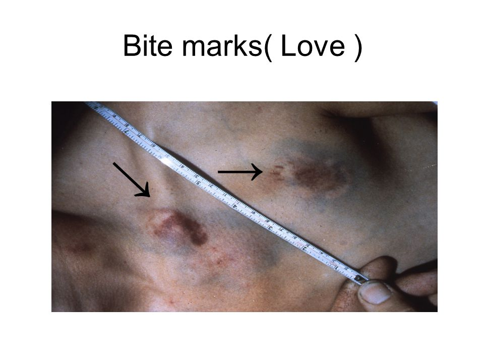Bite marks( Love ) → →